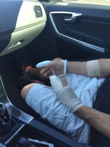AutoHail Jumper Cable Accident
